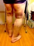 Stan bruising 2 IMG_5462